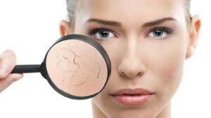 Hé lộ cách chăm sóc da khô hiệu quả và đơn giản